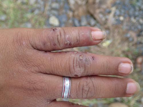 傷がある手