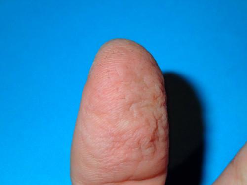 カシューナッツでかぶれた親指