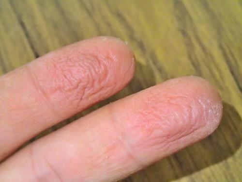 カシューナッツでかぶれた指