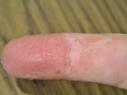カシューナッツで皮が剥けた指