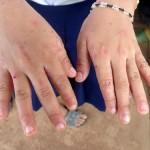 人間の皮膚に住むダニ疥癬(かいせん)に寄生された子供、頭皮がボロボロの皮膚病の子どもと途上国で出会った